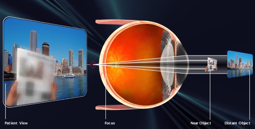 Presbyopia (2)