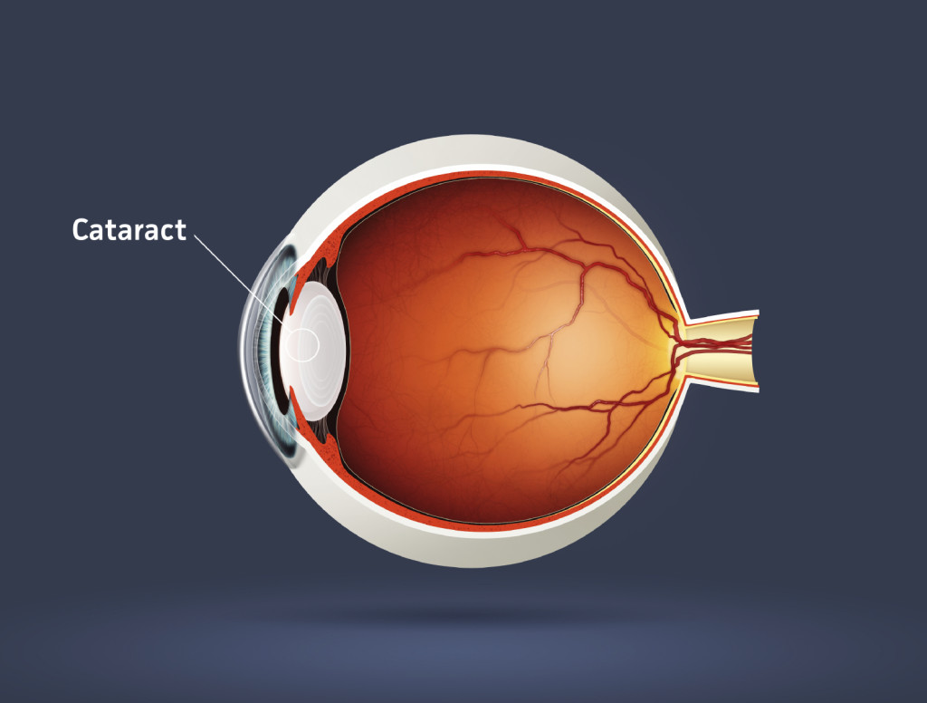 High quality raster illustration of cataract (eye disease)
