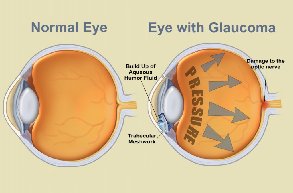 eyes article- glaucoma